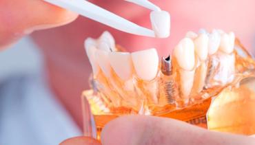 Dental Implants in Kamsack