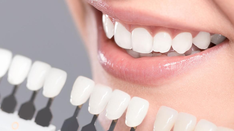 Teeth Whitening in Kamsack